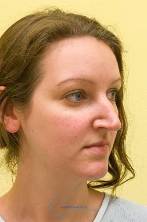 Rhinoplasty: Patient 64 - Before 4