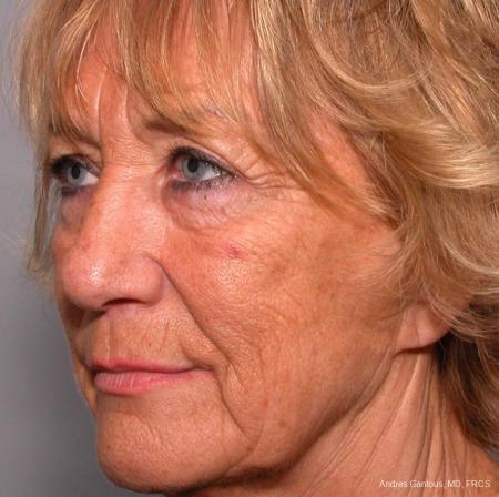 Facelift & Neck Lift: Patient 4 - Before Image 2