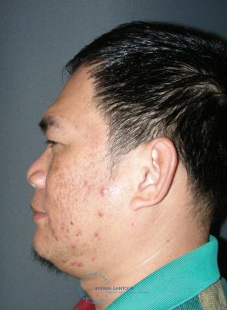 Rhinoplasty: Patient 65 - Before and After Image 6