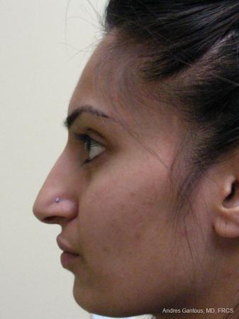 Rhinoplasty: Patient 29 - Before Image 4