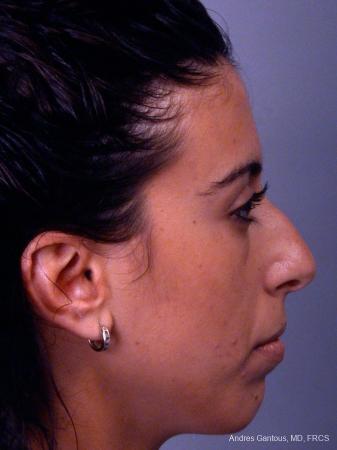 Rhinoplasty: Patient 15 - Before Image 2
