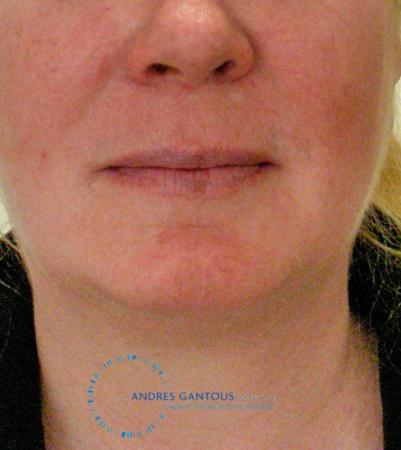Chin Augmentation: Patient 9 - After Image