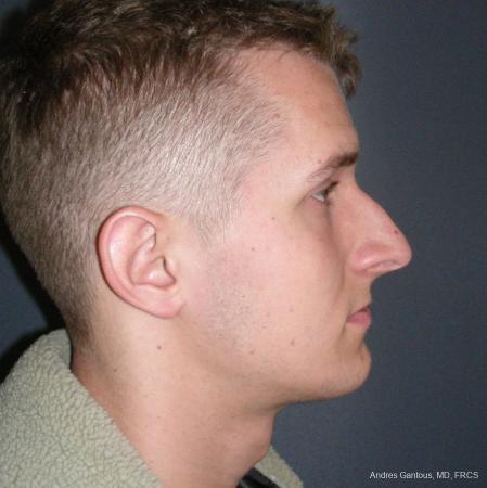 Rhinoplasty: Patient 50 - Before Image 3