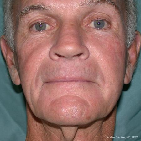 Facelift & Neck Lift: Patient 1 - Before Image 1