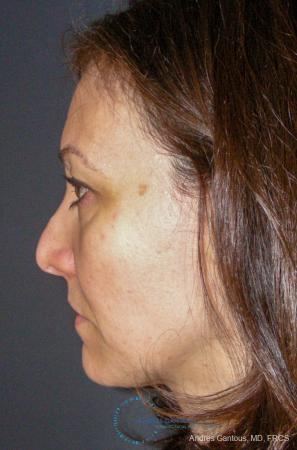 Revision Rhinoplasty: Patient 14 - Before and After Image 6
