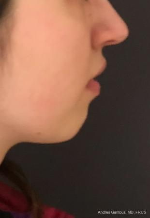 Chin Augmentation: Patient 5 - Before and After Image 3