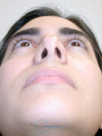 Revision Rhinoplasty: Patient 15 - Before Image 2