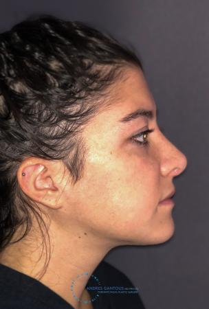 Revision Rhinoplasty: Patient 21 - After Image 6