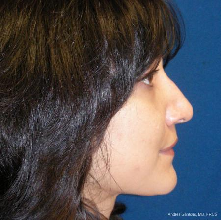 Rhinoplasty: Patient 43 - After Image 5