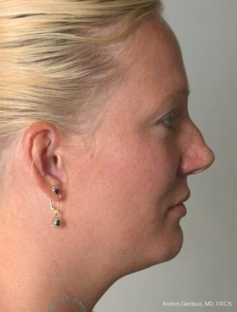 Rhinoplasty: Patient 97 - Before and After Image 5