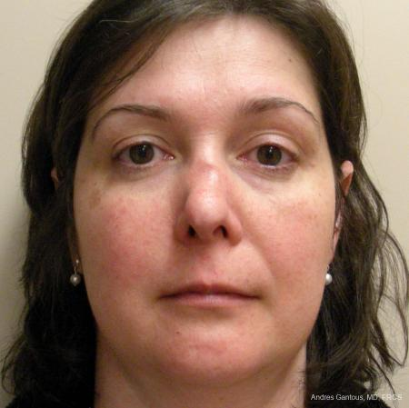 Reconstructive Rhinoplasty: Patient 5 - Before Image