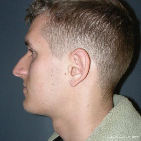 Rhinoplasty: Patient 50 - Before and After Image 5