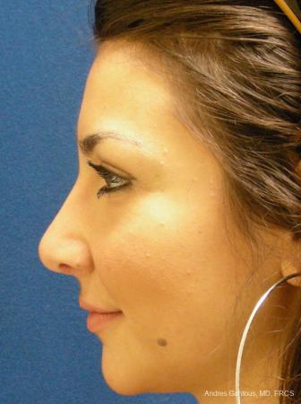 Rhinoplasty: Patient 31 - After Image 4