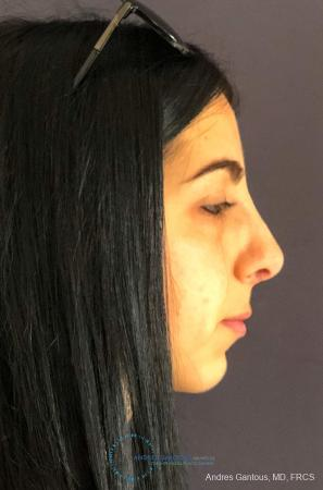 Rhinoplasty: Patient 87 - After Image 5