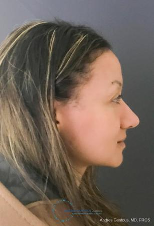 Rhinoplasty: Patient 97 - After Image 5