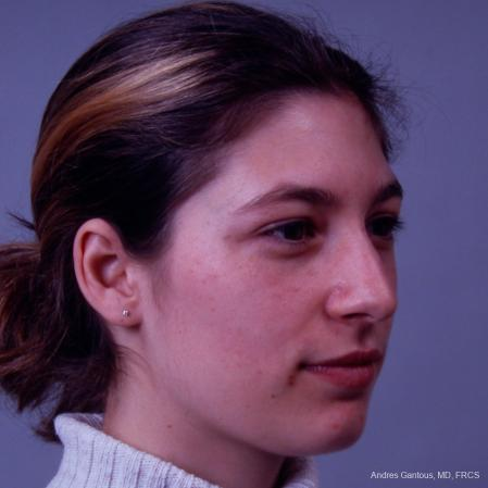 Rhinoplasty: Patient 33 - Before Image 3