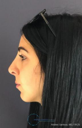 Rhinoplasty: Patient 87 - After Image 6