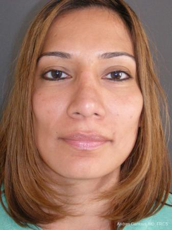Rhinoplasty: Patient 59 - After Image 1