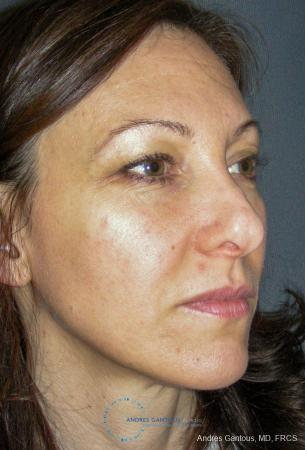 Revision Rhinoplasty: Patient 14 - Before Image 3