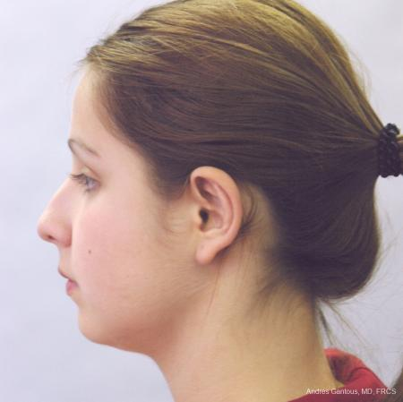 Otoplasty And Earlobe Repair: Patient 15 - After Image 2
