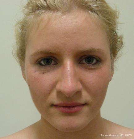 Otoplasty And Earlobe Repair: Patient 17 - After Image 1
