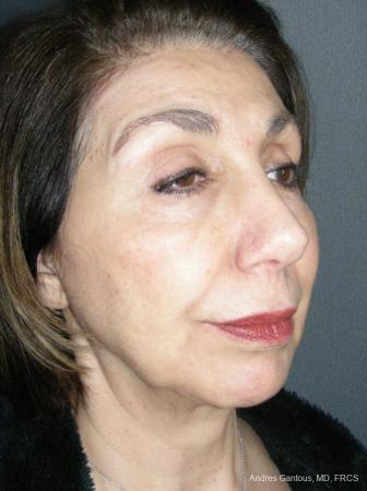 Rhinoplasty: Patient 55 - After Image 4