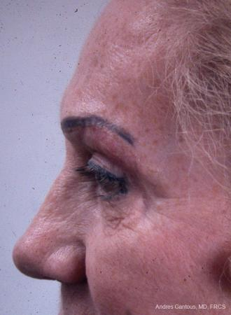 Eyelid Lift: Patient 8 - After Image 5