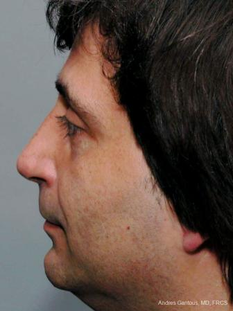 Rhinoplasty: Patient 18 - After Image 3