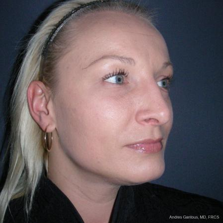 Rhinoplasty: Patient 49 - After Image 2