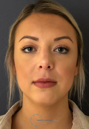 Rhinoplasty: Patient 73 - After Image 1