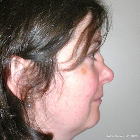 Reconstructive Rhinoplasty: Patient 5 - Before Image 3