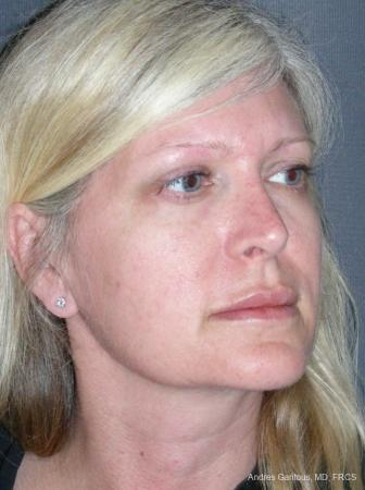 Rhinoplasty: Patient 46 - After Image 2