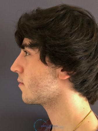 Rhinoplasty: Patient 69 - After Image 6