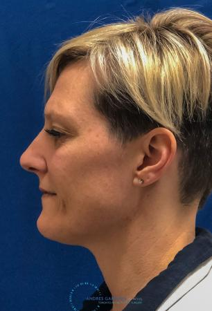 Rhinoplasty: Patient 70 - Before and After Image 6