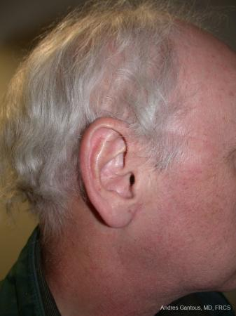 Otoplasty And Earlobe Repair: Patient 24 - After Image 3