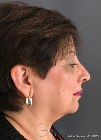 Rhinoplasty: Patient 94 - After Image 5
