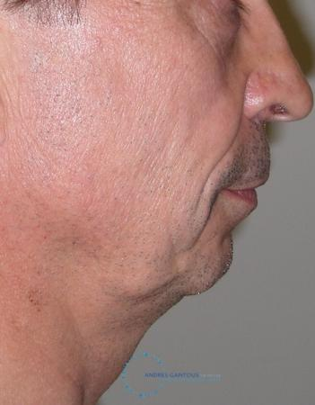 Chin Augmentation: Patient 3 - Before and After Image 3