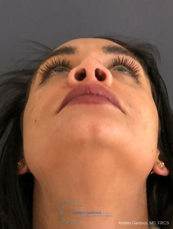 Revision Rhinoplasty: Patient 15 - Before and After Image 2