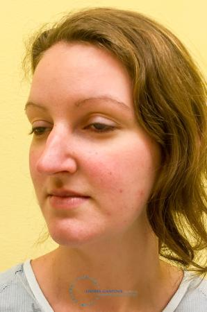 Rhinoplasty: Patient 66 - Before Image 3