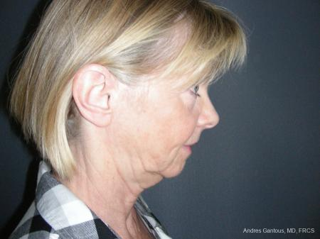 Facelift & Neck Lift: Patient 10 - Before and After Image 6
