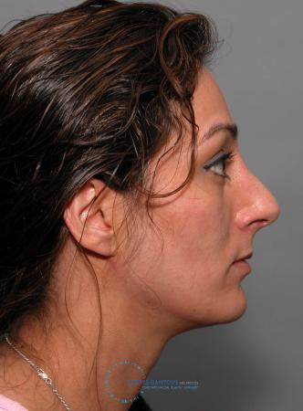 Revision Rhinoplasty: Patient 17 - Before 3