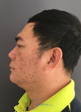 Rhinoplasty: Patient 65 - After Image 6