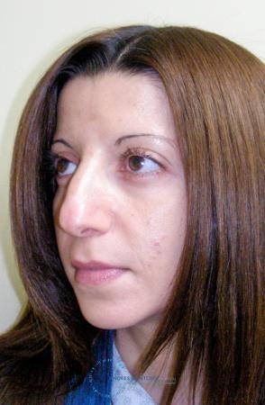 Rhinoplasty: Patient 64 - Before Image 3