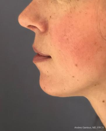 Chin Augmentation: Patient 7 - After Image 2