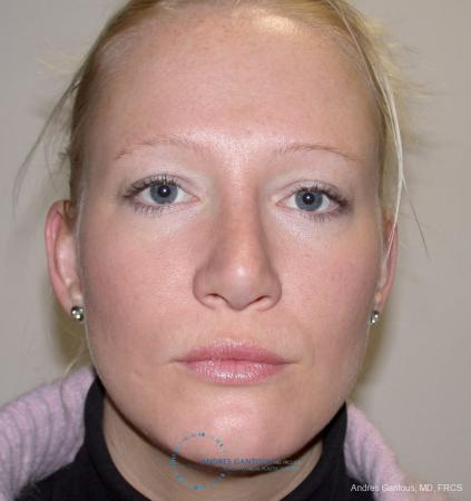 Rhinoplasty: Patient 97 - After Image 1