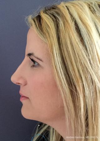 Rhinoplasty: Patient 95 - After Image 6