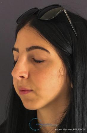 Rhinoplasty: Patient 87 - After Image 4