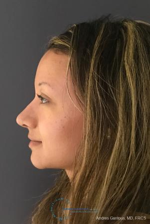 Rhinoplasty: Patient 97 - After Image 6
