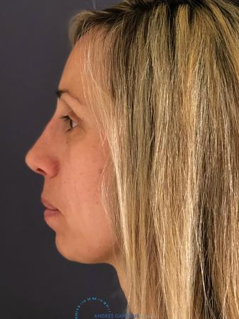 Rhinoplasty: Patient 75 - After Image 5