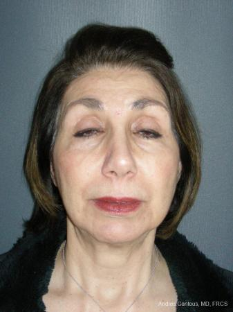 Rhinoplasty: Patient 55 - After Image 1